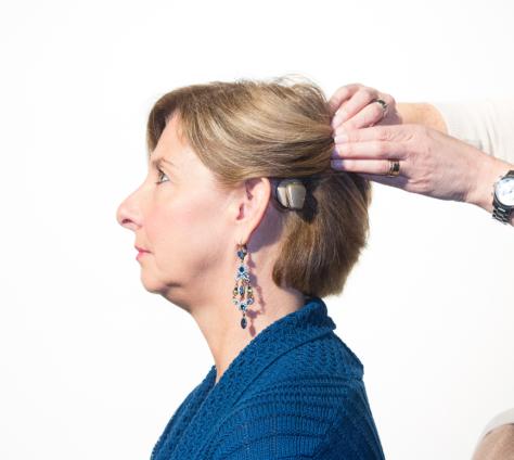 Femme-avec-appareil-auditif-a-conduction-osseuse