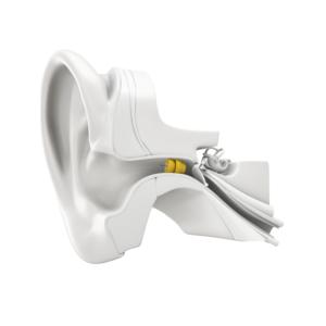 Les-solutions-auditives-invisibles-d-audition-lefeuvre-Lyric-3