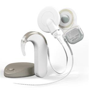 Nos-solutions-d-implants-cochléaires