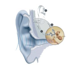 Nos-solutions-d-implants-d-oreille-moyenne-audition-lefeuvre