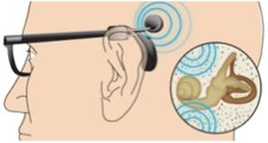 Nos-solutions-d-implants-par-vibration-osseuse