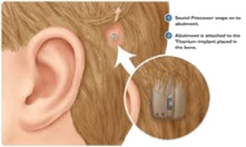Nos-solutions-d-implants-transcutanee-audition-lefeuvre